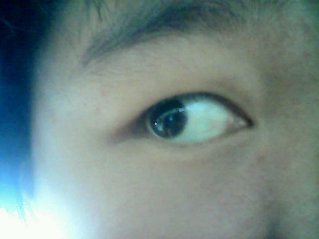 小孩子眼睛有红血丝_眼睛有红血丝,比较粗,长期不退,会不会是息肉什么的,怎么 ...