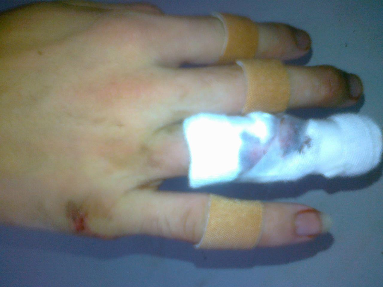 胳膊被玻璃划伤图片_手指的划伤 包扎后 纱布和血疤连再一起了. 怎么样取下来有效 ...