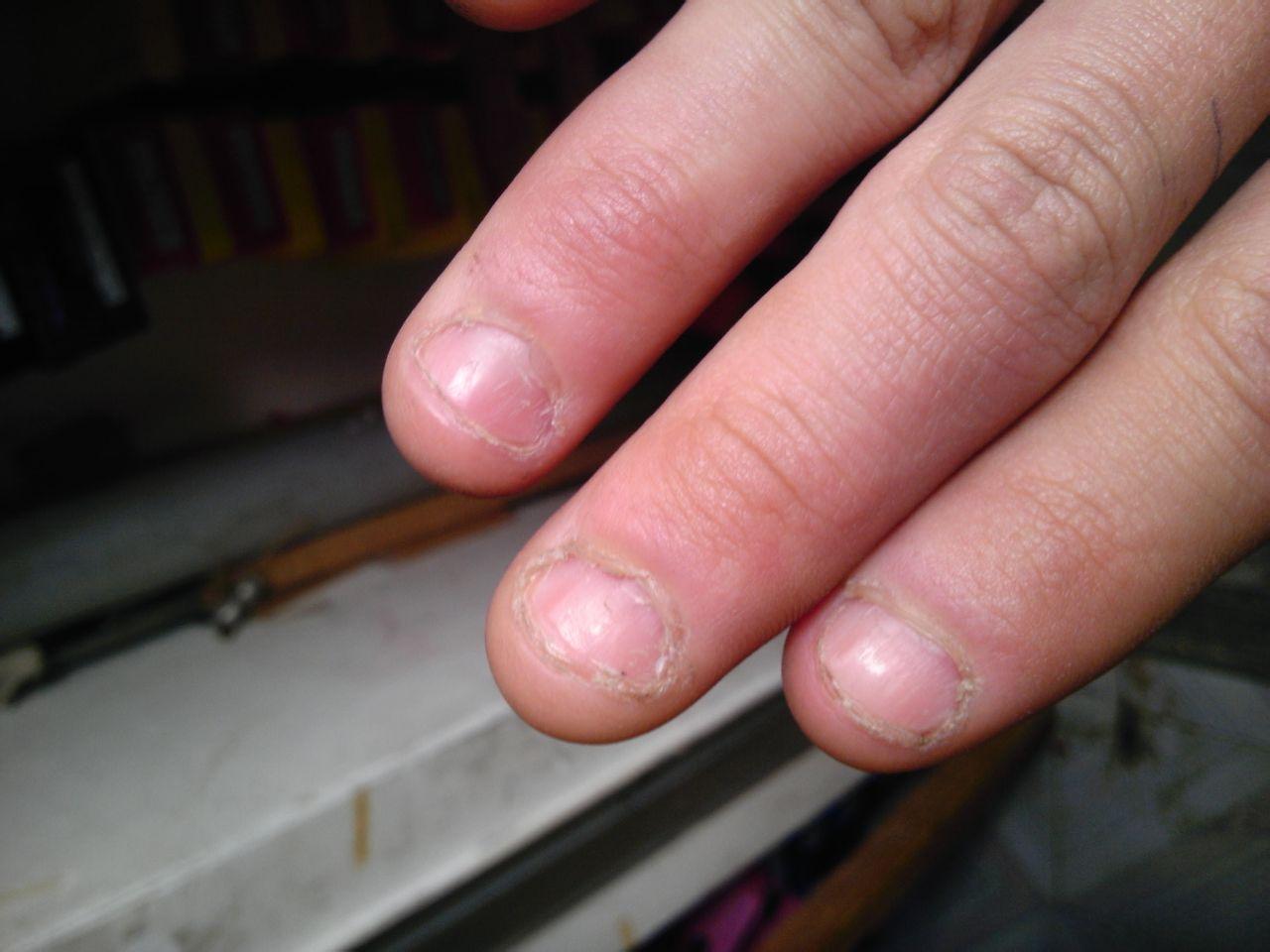 手指甲爛爛的怎么辦圖片