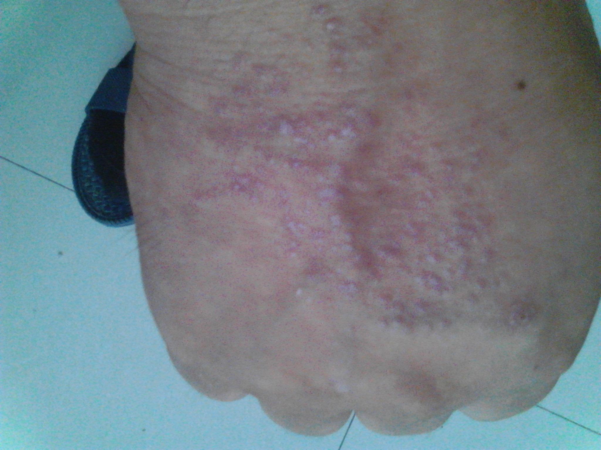 手背上皮炎引起真菌感染怎么治手背上皮炎引起真菌感染怎么治