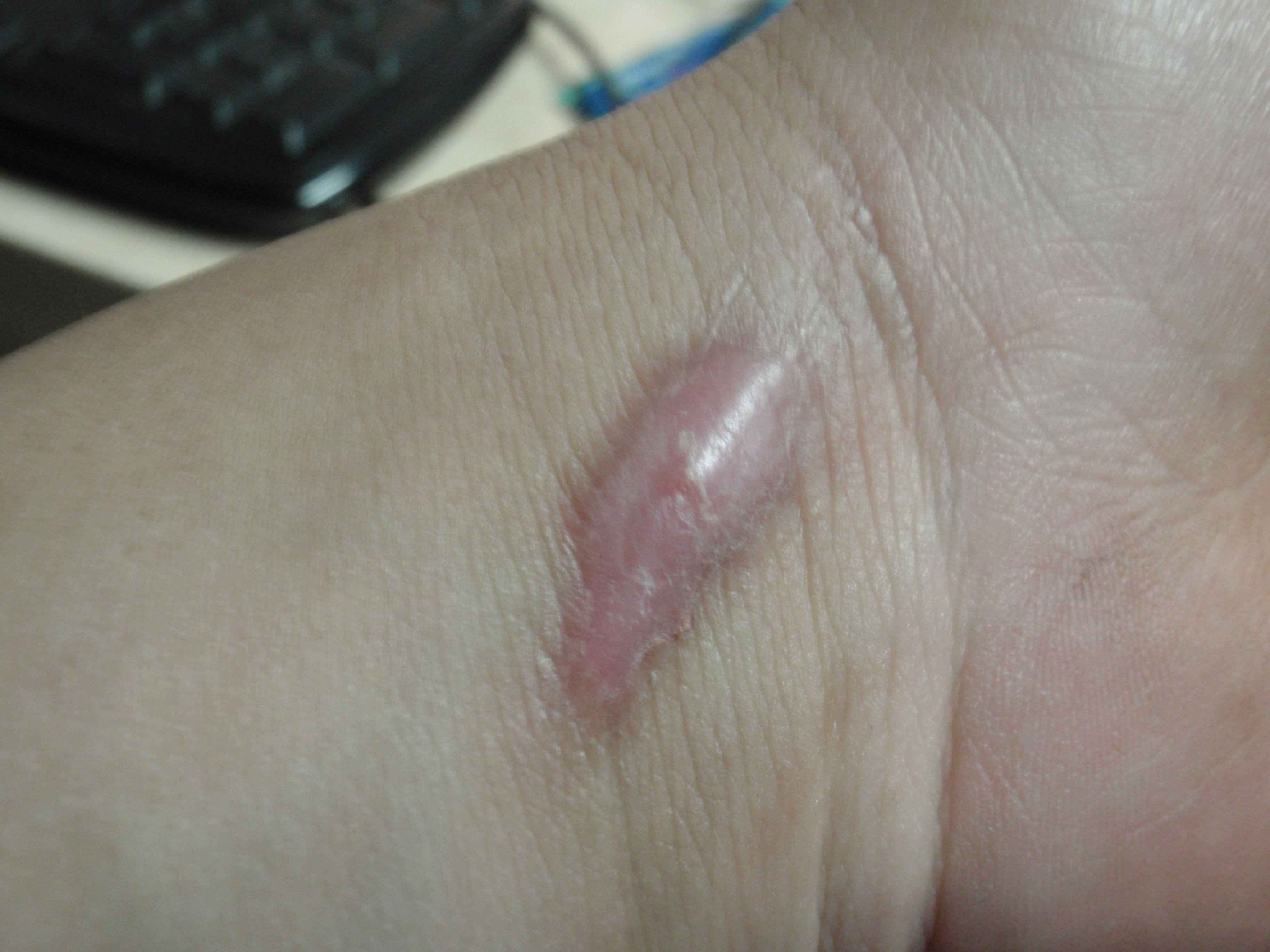 伤口感染_伤口感染怎么处理