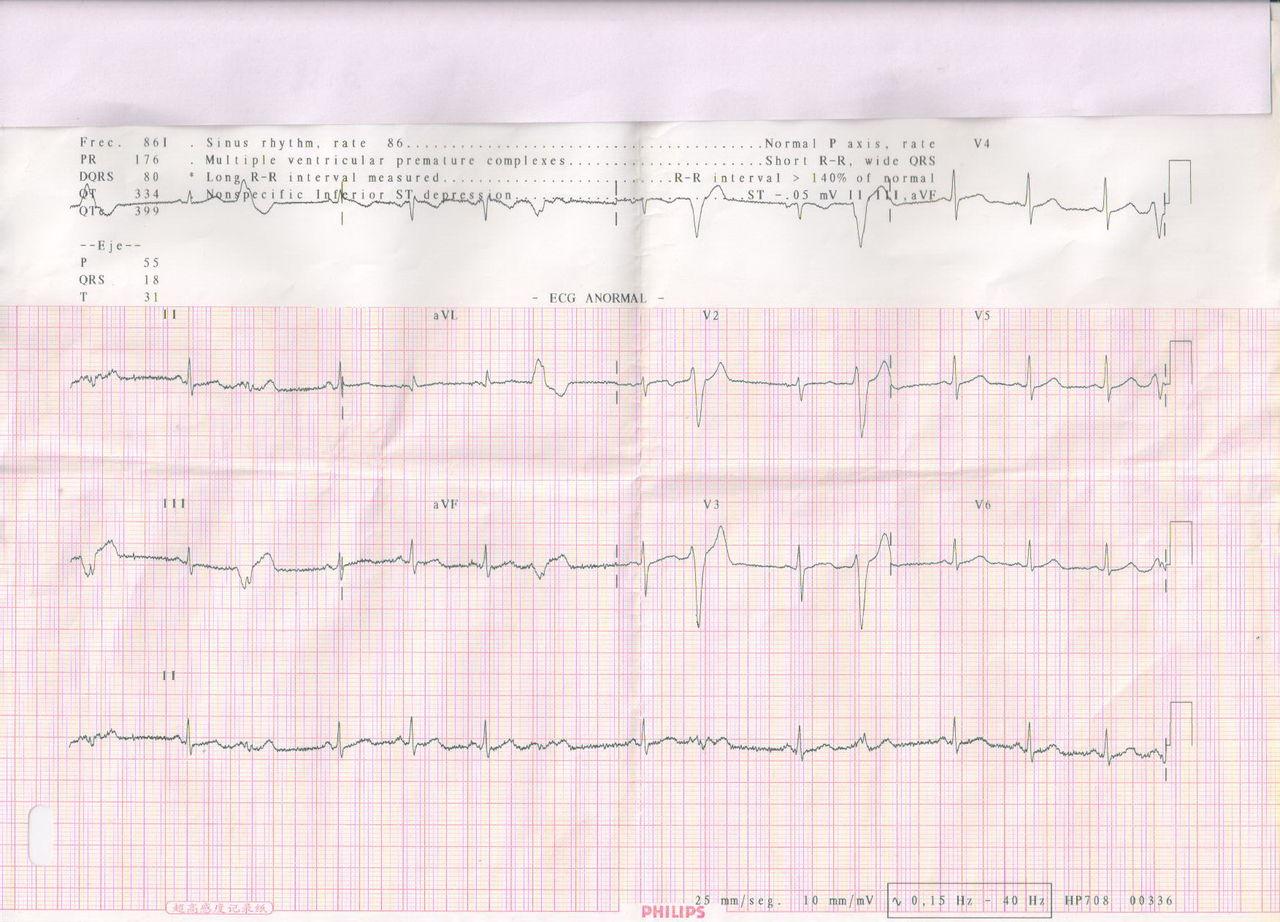 窦性心律不齐 早搏_我怀孕马上6个月了,检查心电图时显示窦性心律,频发室性早搏 ...