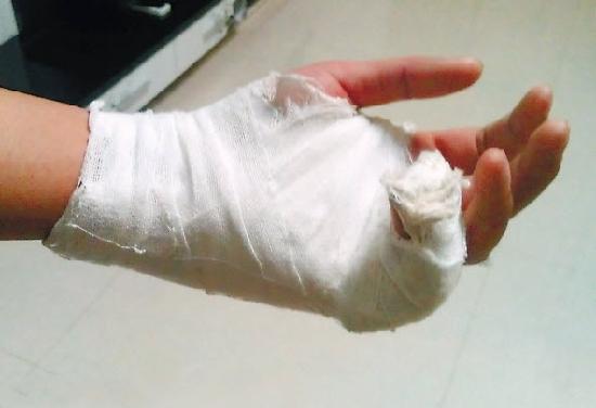 求一张左手受伤包扎的图片,不要文字,只要手部,速度的来,求一张左手受伤包扎的图片,不要文字,只要手部,速度的来,100