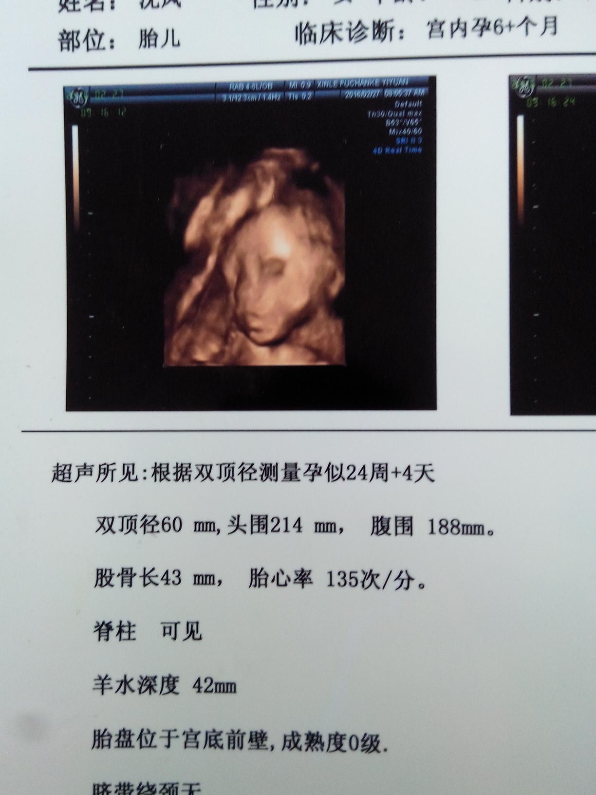 四维彩超图像_四维彩超多久能拿结果-做四维一次成功妙招,四维医生暗示像妈妈 ...