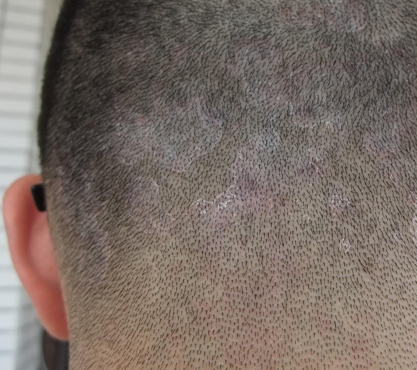 头部银屑病如何治疗_头皮癣症状_头皮癣症状图片_淘宝助理