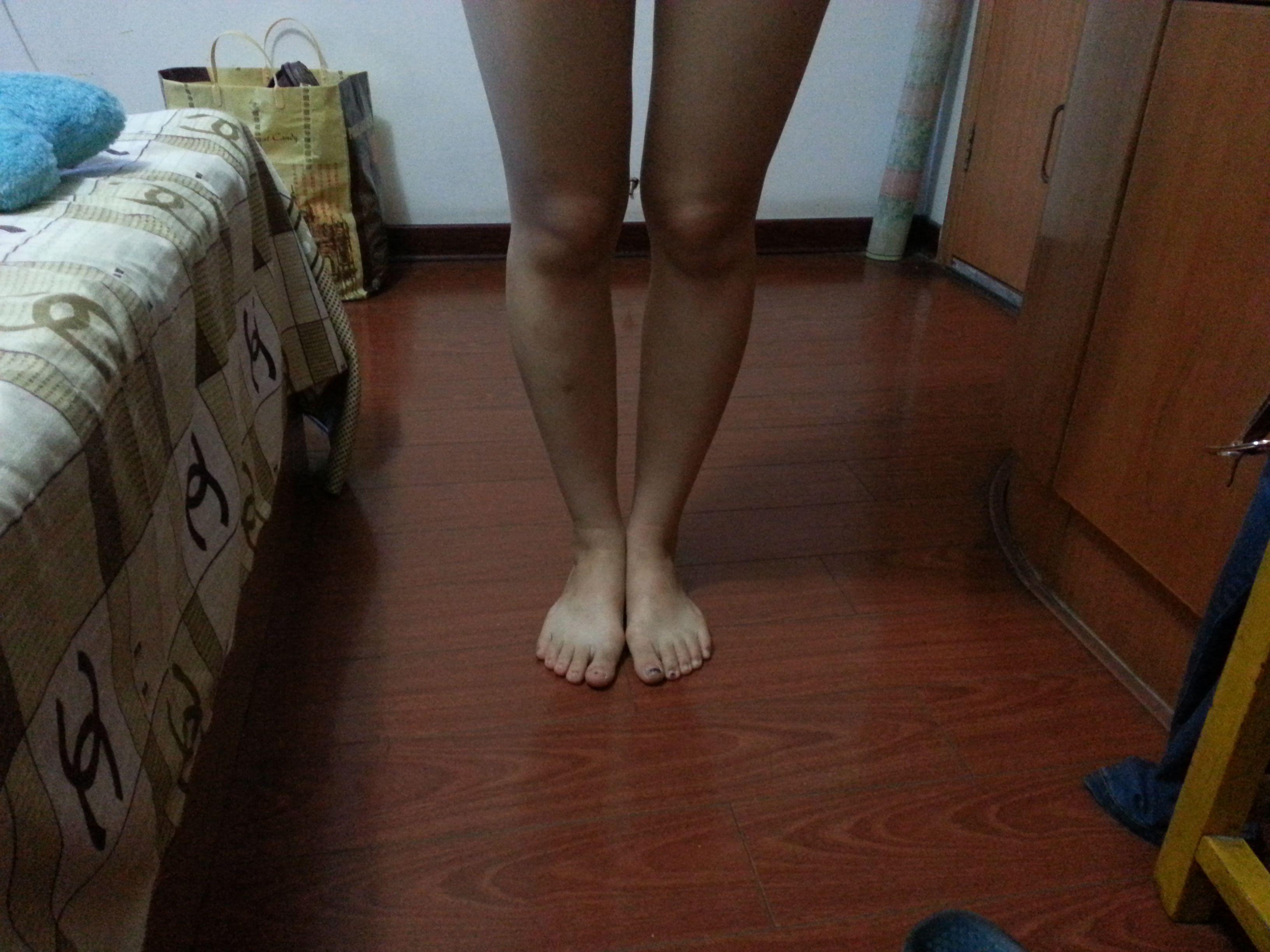请大家看看我这样的腿算0型腿吗?15