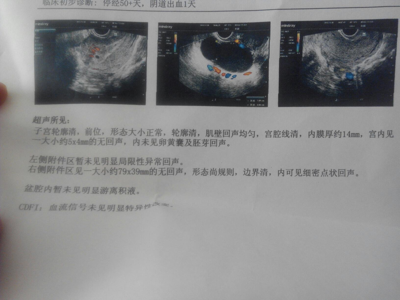阴超_前两天去医院做了白带和阴超,第二天就发现下面有一点