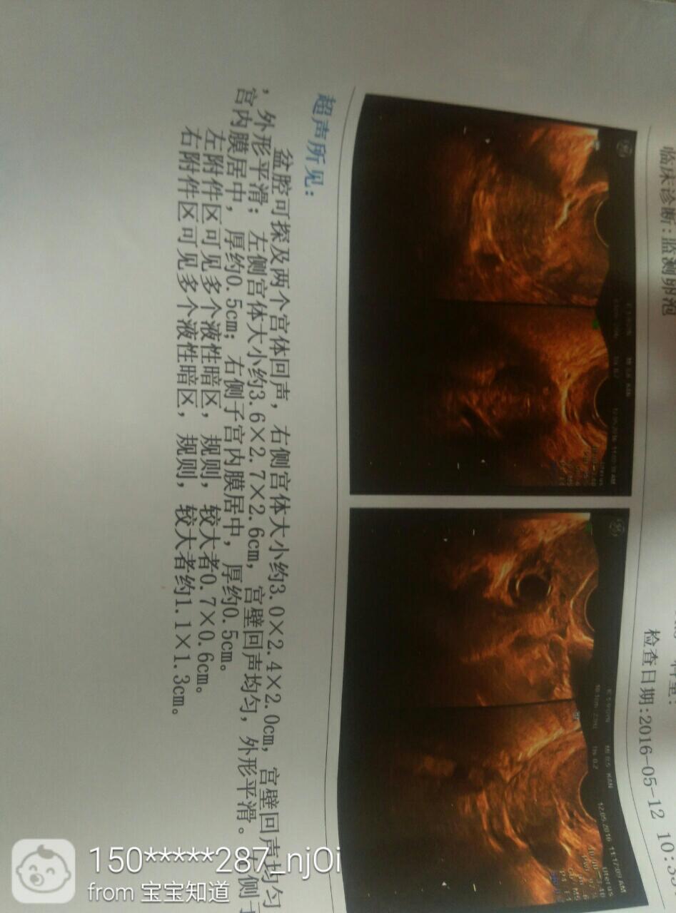 阴超子宫_双子宫一直没有怀孕,做b超显示双子宫,今天做了个阴超测排卵,心里很