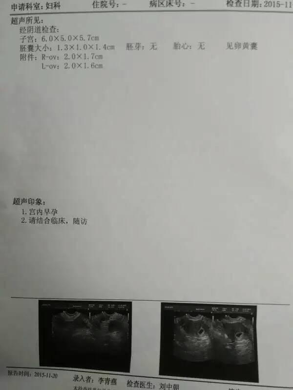 日本骚妇做爱13片_25号来月经,13号和男朋友做爱,他快射的时候拔出来了