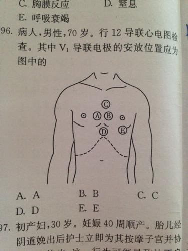 北京哪里脱腋???9io_bcde位置上都是安v几导联阿