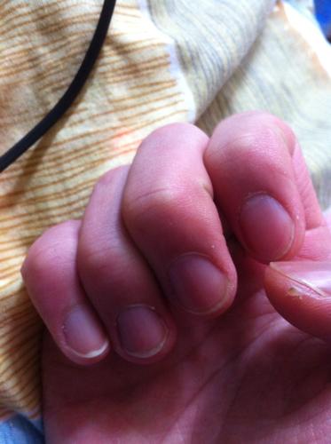 手指甲發紫發黑圖片