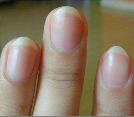 手指甲變形是怎么回事?圖片