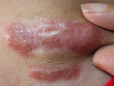 我胸口長了增生型疤痕疙瘩已經有8年之久圖片