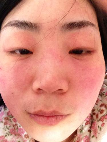 眼部皮肤过敏_皮肤过敏搽什么-皮肤过敏用什么药好-皮肤过敏搽什么药水-皮肤 ...