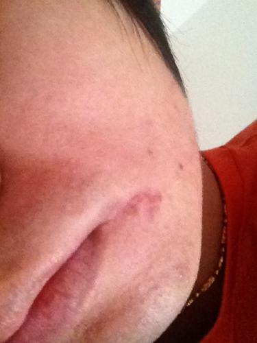 阴唇里面皮肤有个疙瘩_月经两个月才来一次,嘴巴还长有小胡子 阴唇边上长了一个疙瘩, 耳朵边