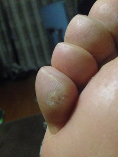 我的腳一走路就疼,腳上的小拇指硬的小包圖片