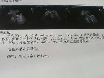 偷拍自拍亚洲色图欧美情色剹�n�f�x�_7cmx2.1cm.会影响