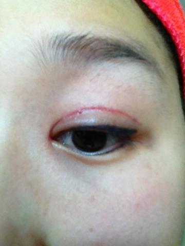 刚刚割完双眼皮之后的样子_双眼皮术后增生_双眼皮术后眼角增生_双眼皮术后一个月照片-九九网
