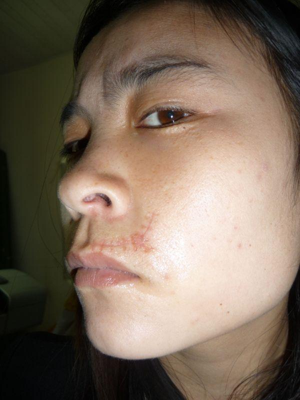 脸上的暗疮怎么去除_怎么淡化脸上疤痕?_百度知道
