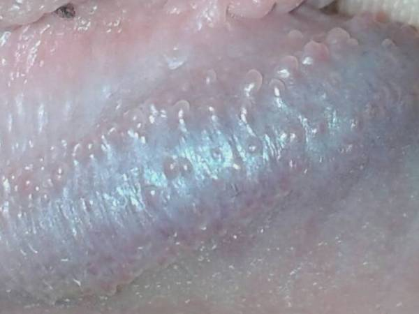 冠状沟珍珠疹图片_系带旁边珍珠疹-系带珍珠疹-龟头珍珠疹怎么去除-珍珠疹怎么 ...