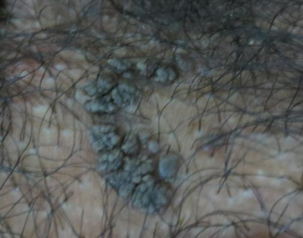 外阴长了个包痛_外阴根部长小黑疙瘩是什么皮肤病?_百度知道